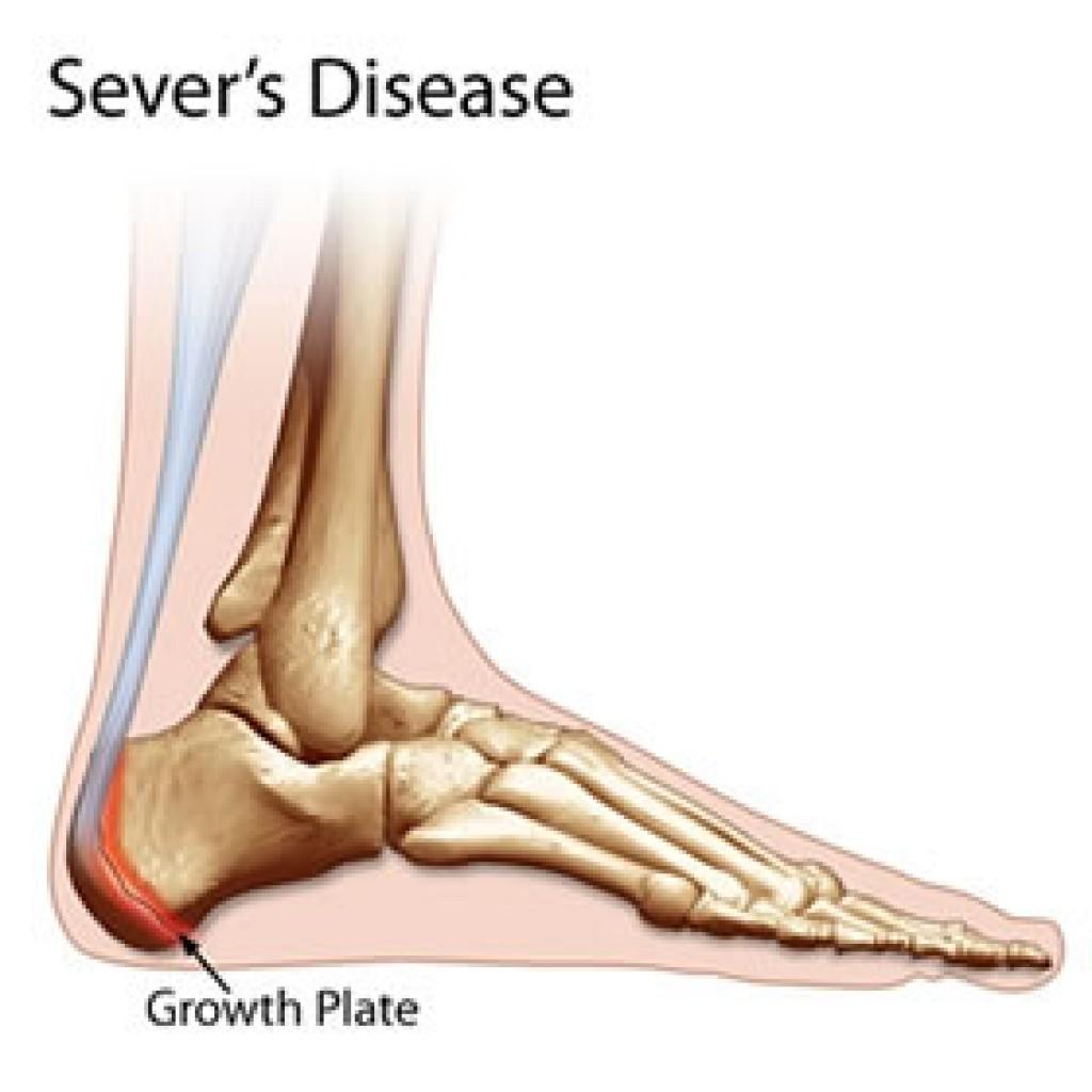 Back Of Heel Pain Diagram | Diagram